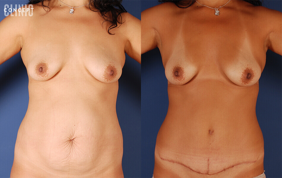 intervention de chirurgie esthétique : abdominoplastie